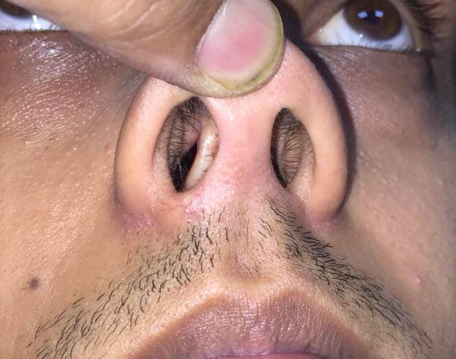 Septoplasty is important part