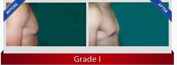 Male Breast Surgery in Delhi