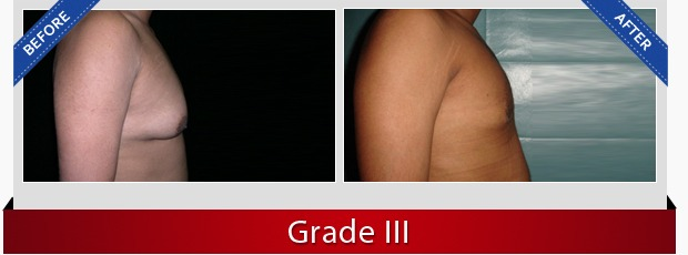 gynecomastia surgeon in delhi
