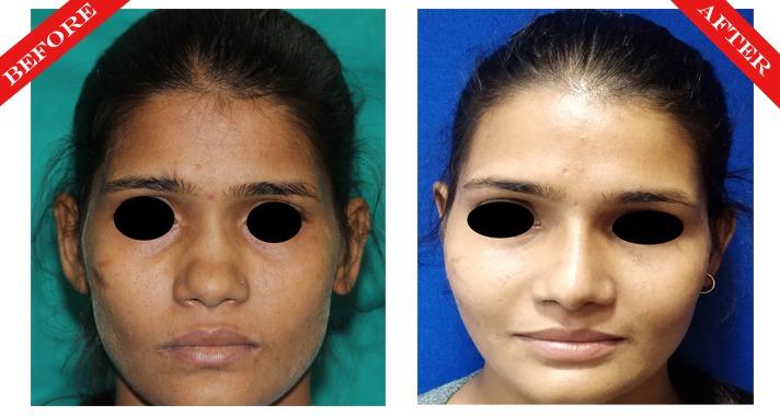 rhinoplasty surgery