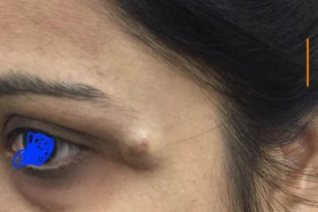 Epidermal cyst are very common