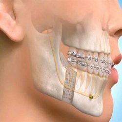 maxxilofacial surgery